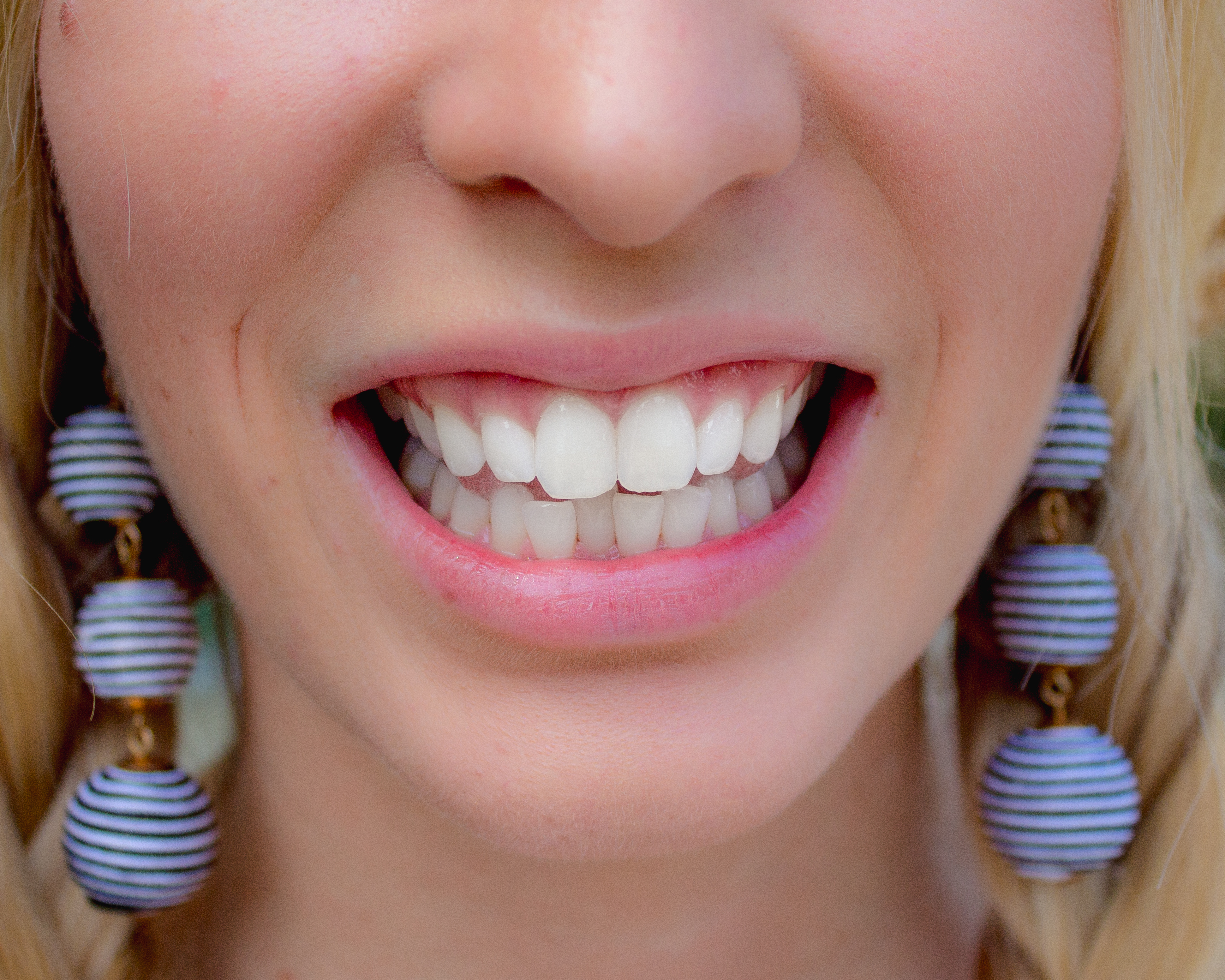 INVISIBLE BRACES: SMILE CONFIDENTLY WITH SMILE DIRECT CLUB